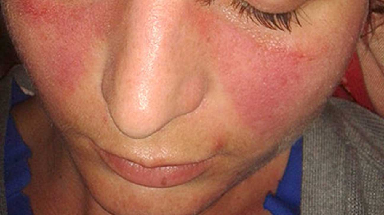 Itchy rash on bum cheeks-9391